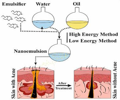 Nanoemulsions: colloidal topical delivery systems for antiacne agents- A Mini-Review